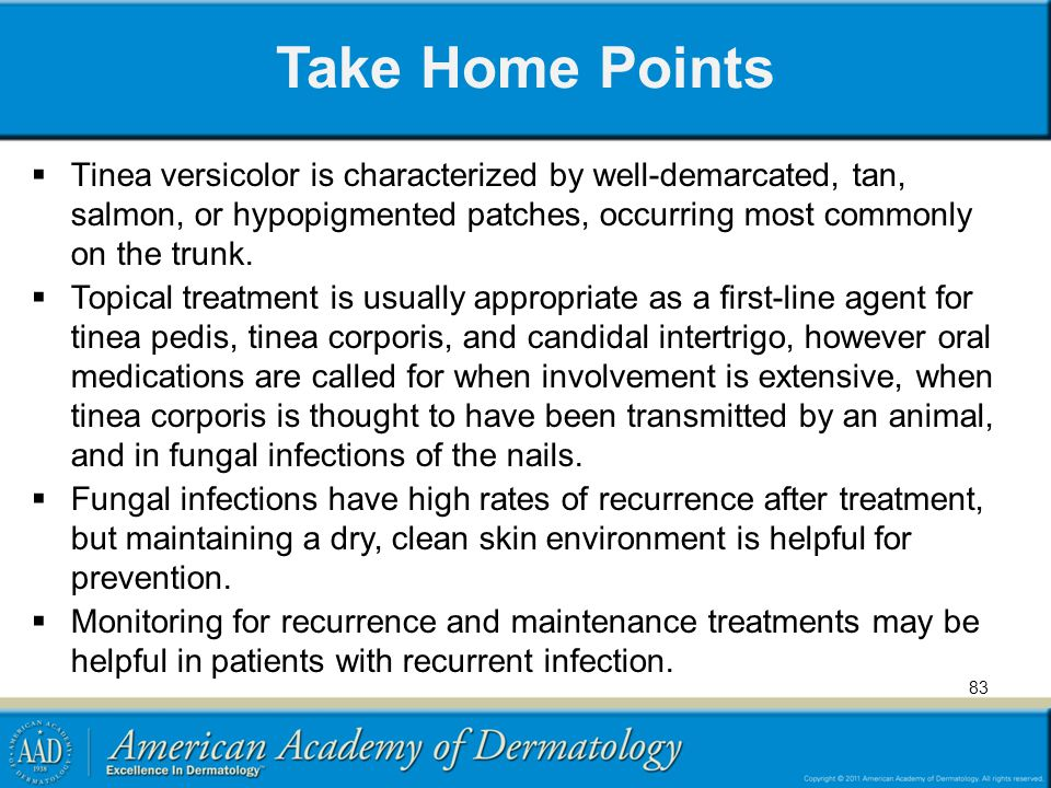 Take Home Points Tinea versicolor is characterized by well-demarcated, tan, salmon, or hypopigmented patches, occurring most commonly on the trunk.
