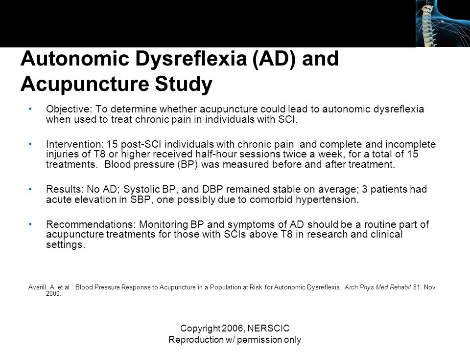 Autonomic Dysreflexia (AD) and Acupuncture Study
