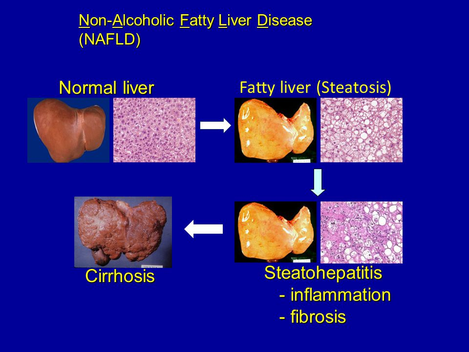 Fatty liver (Steatosis)