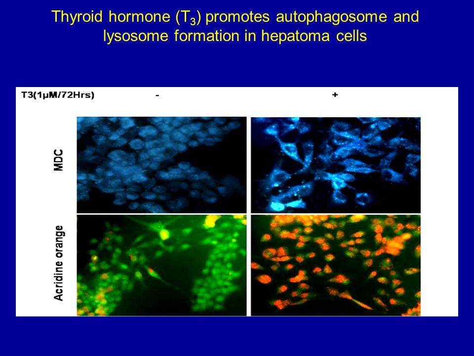 Thyroid hormone (T3) promotes autophagosome and lysosome formation in hepatoma cells