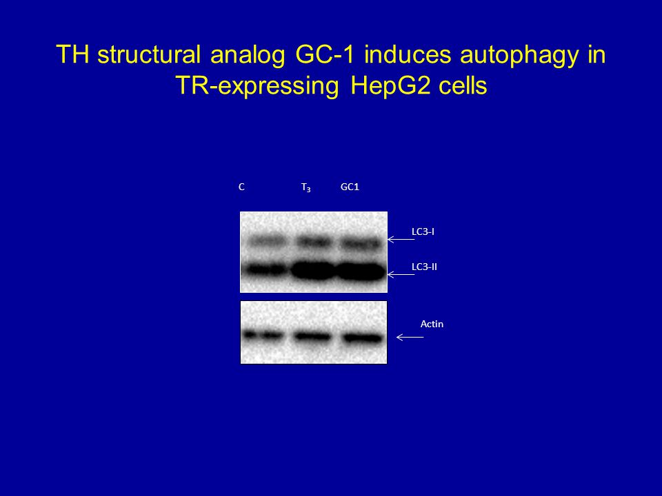 TH structural analog GC-1 induces autophagy in TR-expressing HepG2 cells