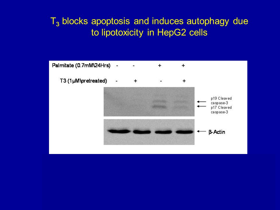 T3 blocks apoptosis and induces autophagy due to lipotoxicity in HepG2 cells