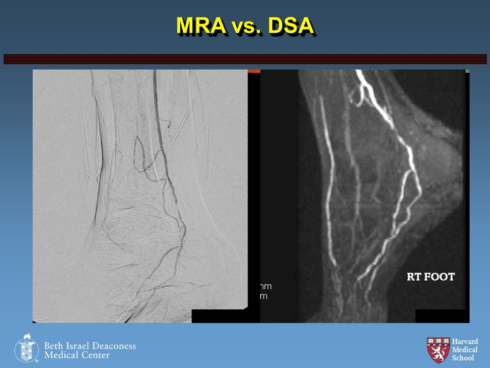 MRA vs. DSA