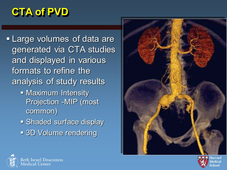 CTA of PVD Large volumes of data are generated via CTA studies and displayed in various formats to refine the analysis of study results.