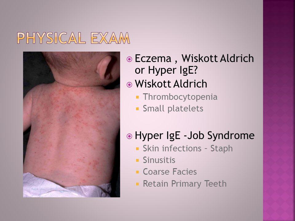 Physical exam Eczema , Wiskott Aldrich or Hyper IgE Wiskott Aldrich
