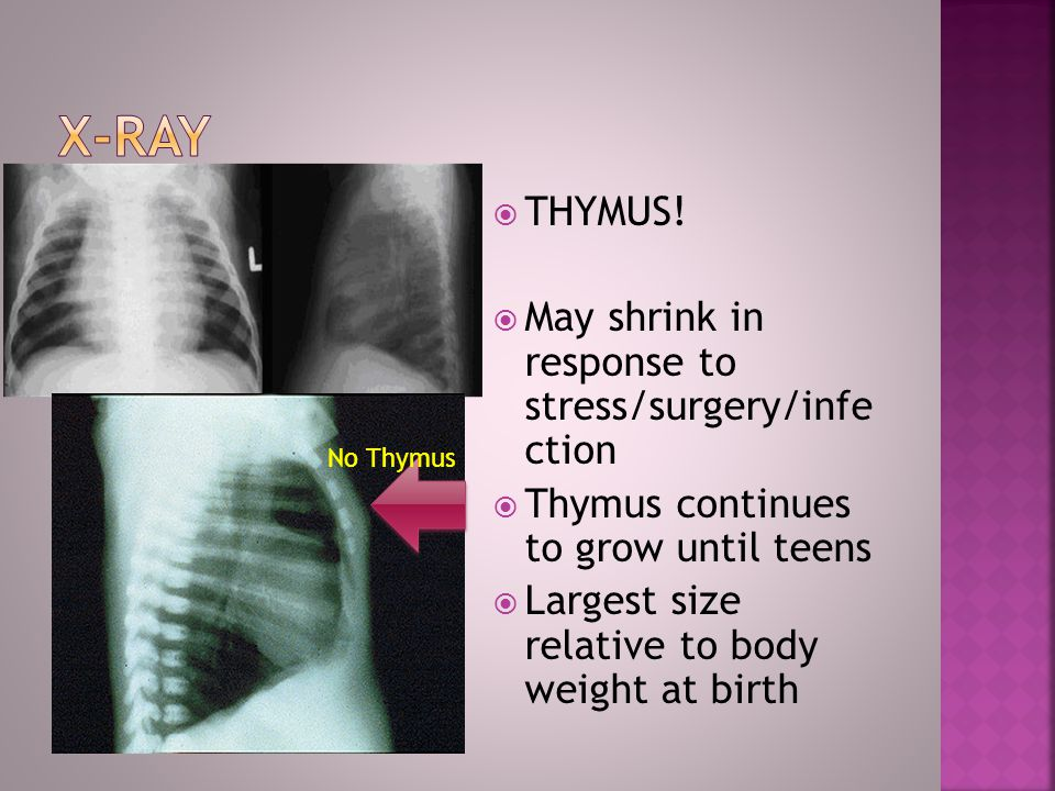 X-Ray THYMUS! May shrink in response to stress/surgery/infe ction