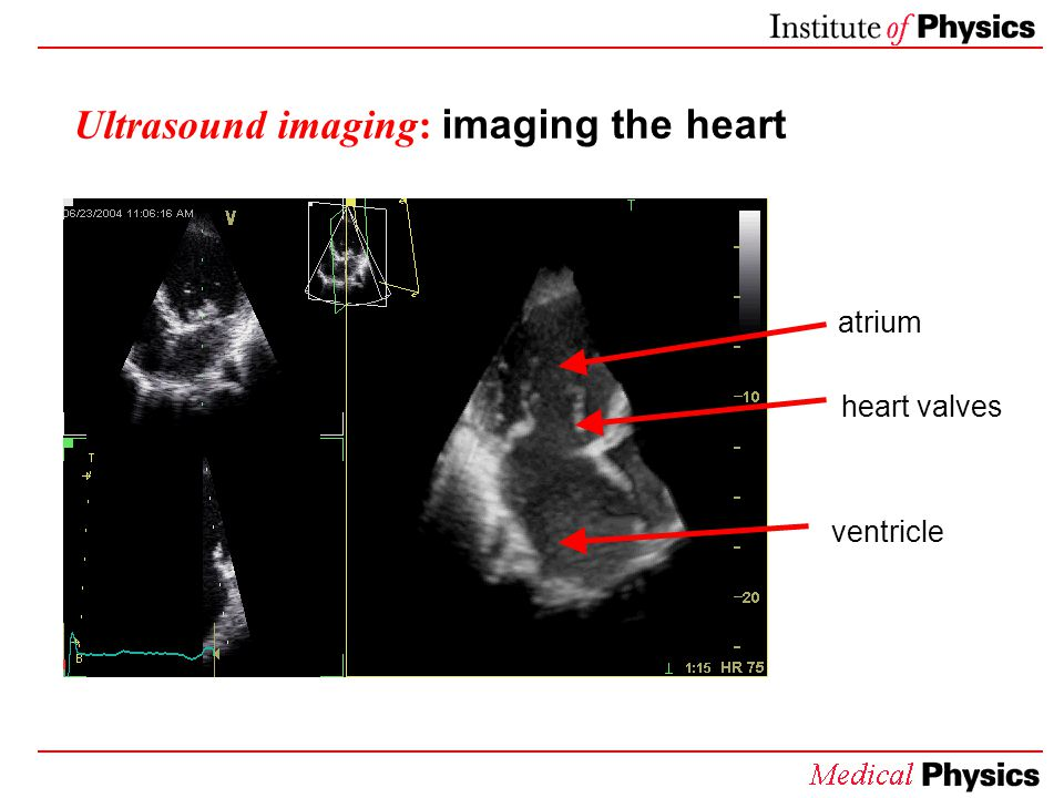 Ultrasound imaging: imaging the heart