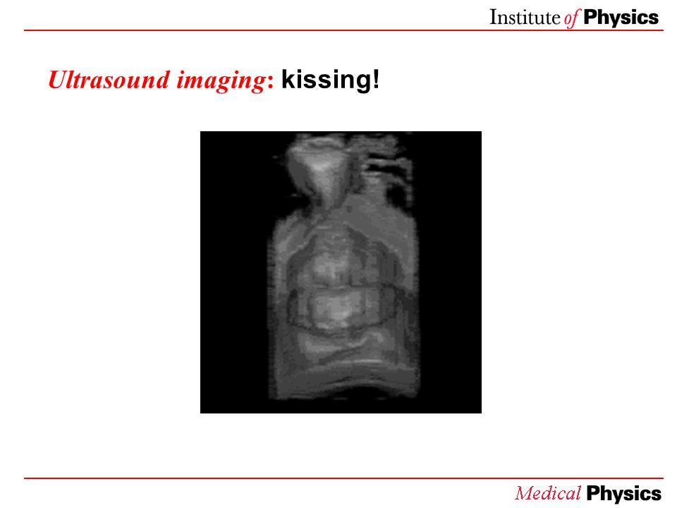 Ultrasound imaging: kissing!