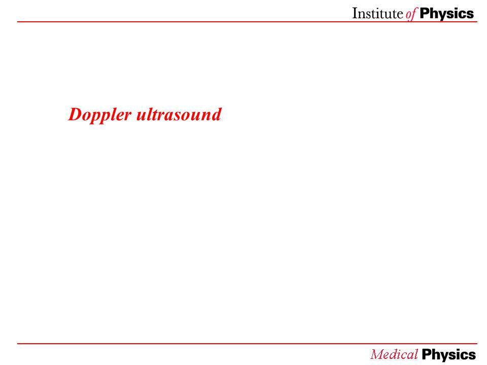 Doppler ultrasound