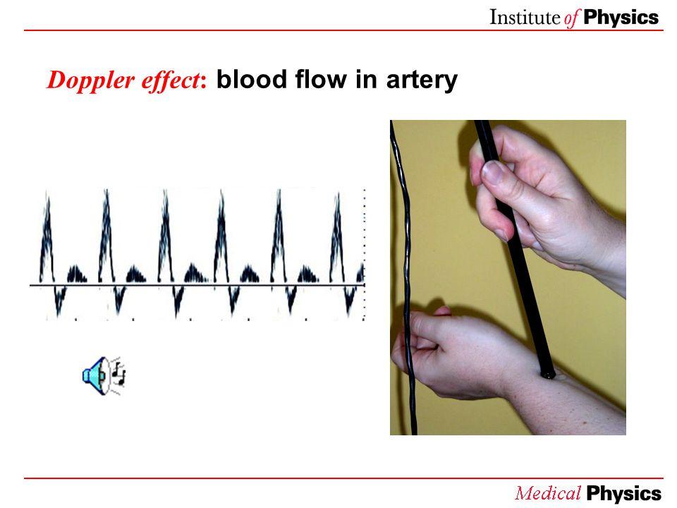 Doppler effect: blood flow in artery