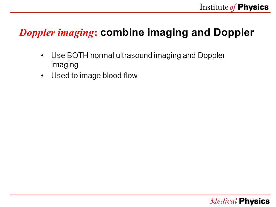 Doppler imaging: combine imaging and Doppler