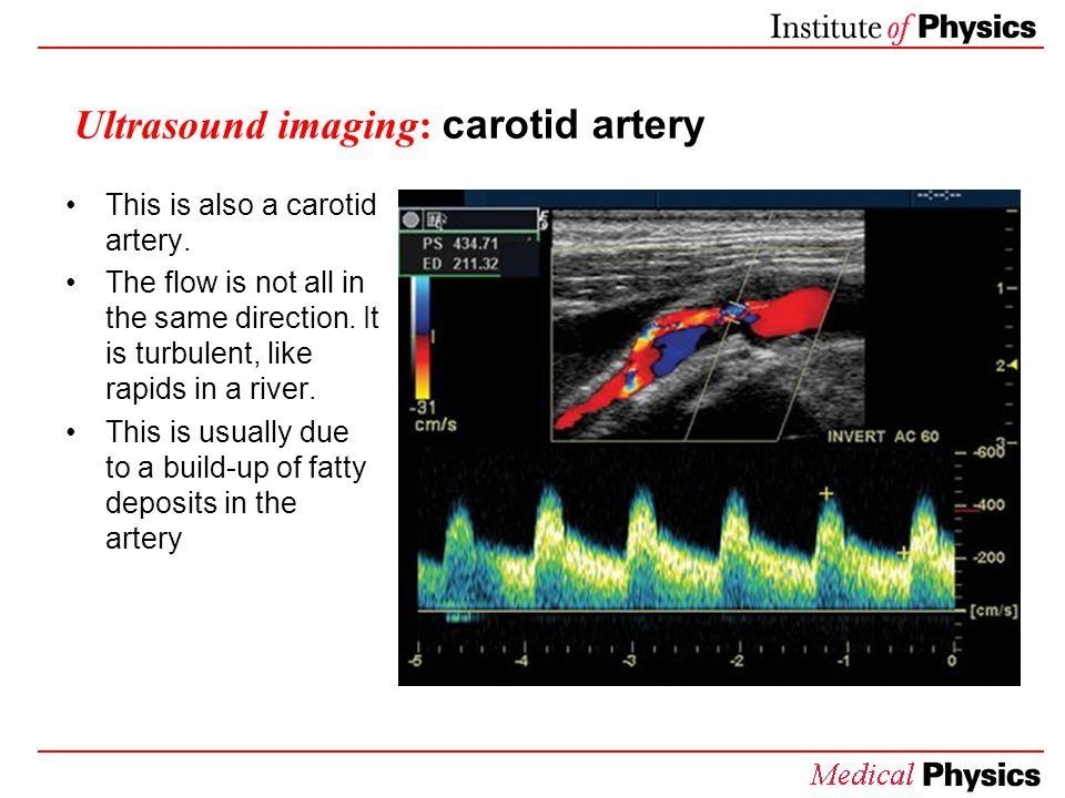 Ultrasound imaging: carotid artery