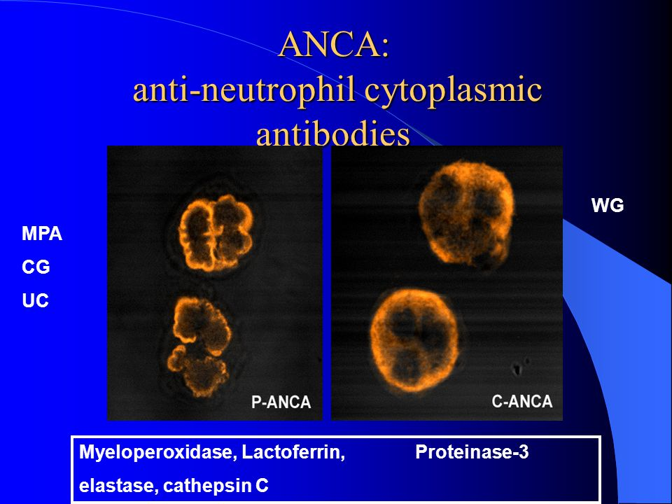 ANCA: anti-neutrophil cytoplasmic antibodies