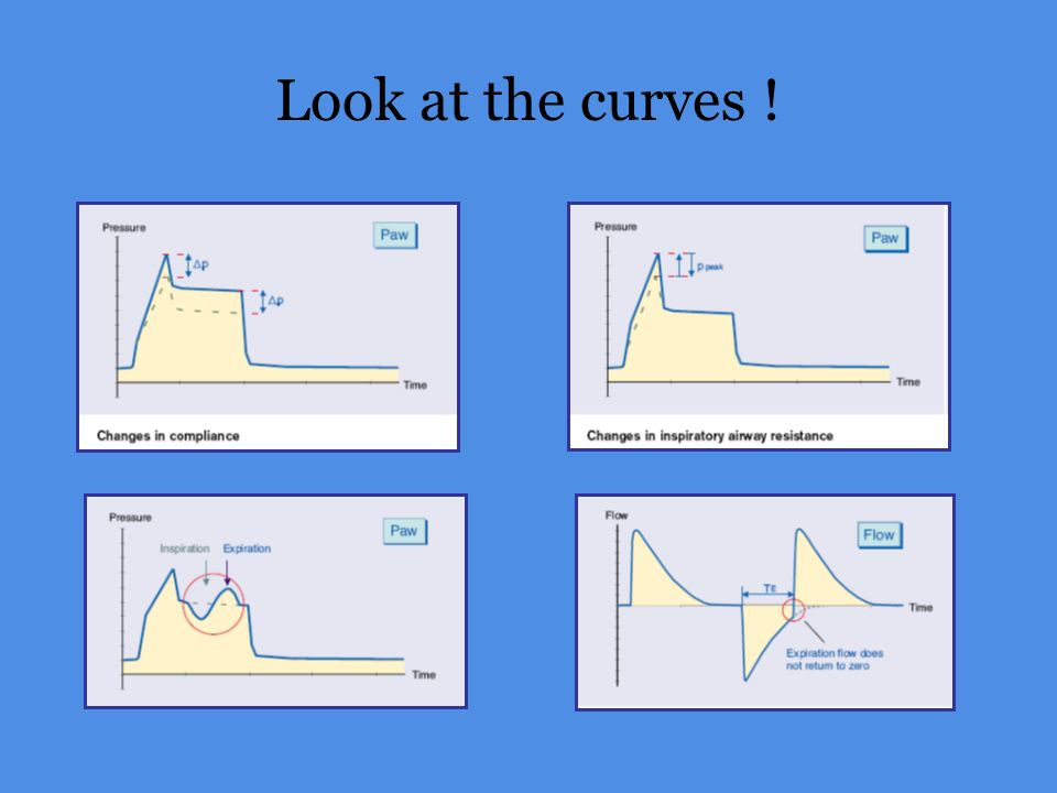 Look at the curves !