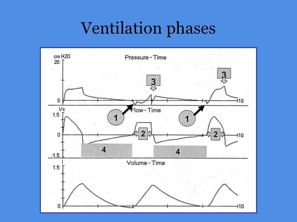 Ventilation phases