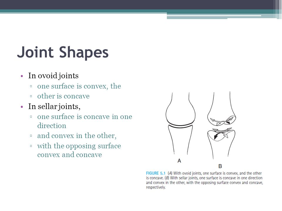 Joint Shapes In ovoid joints In sellar joints,