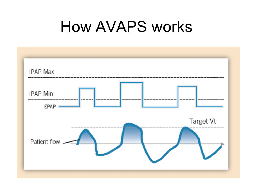 How AVAPS works