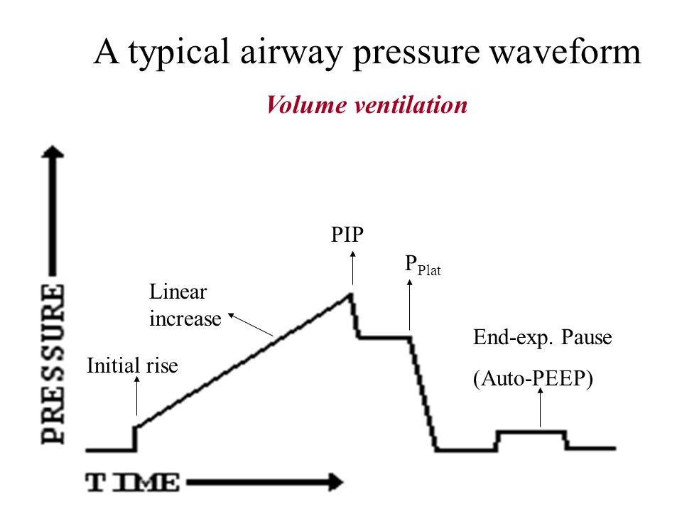 A typical airway pressure waveform