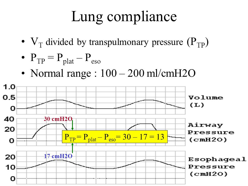 Lung compliance VT divided by transpulmonary pressure (PTP)