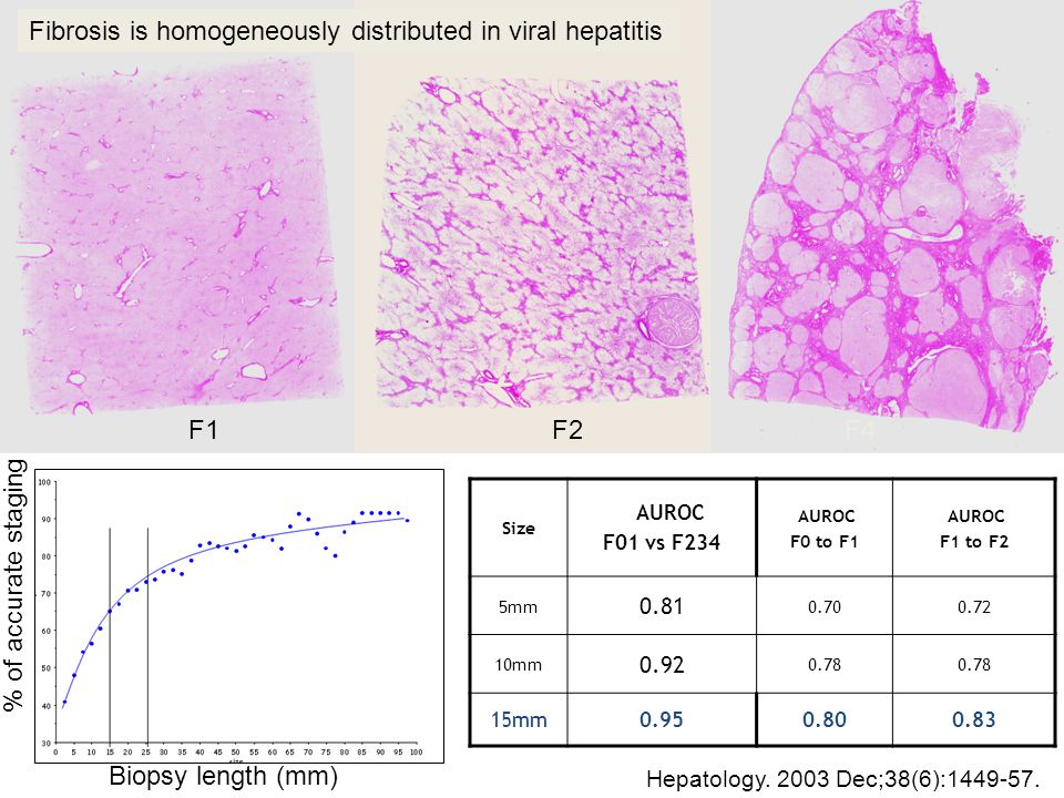 Fibrosis is homogeneously distributed in viral hepatitis