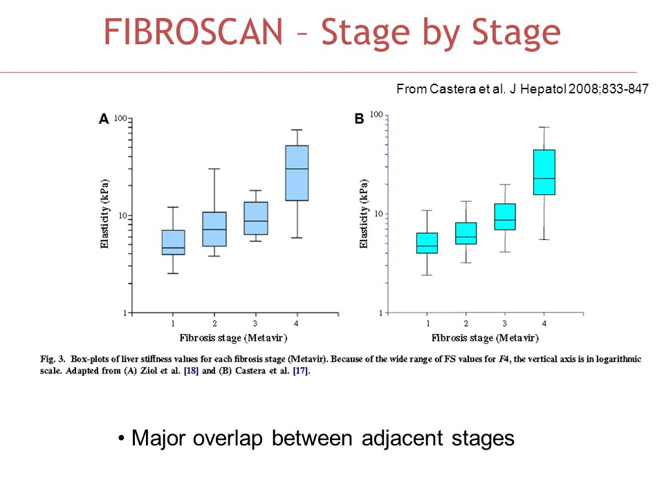 FIBROSCAN – Stage by Stage