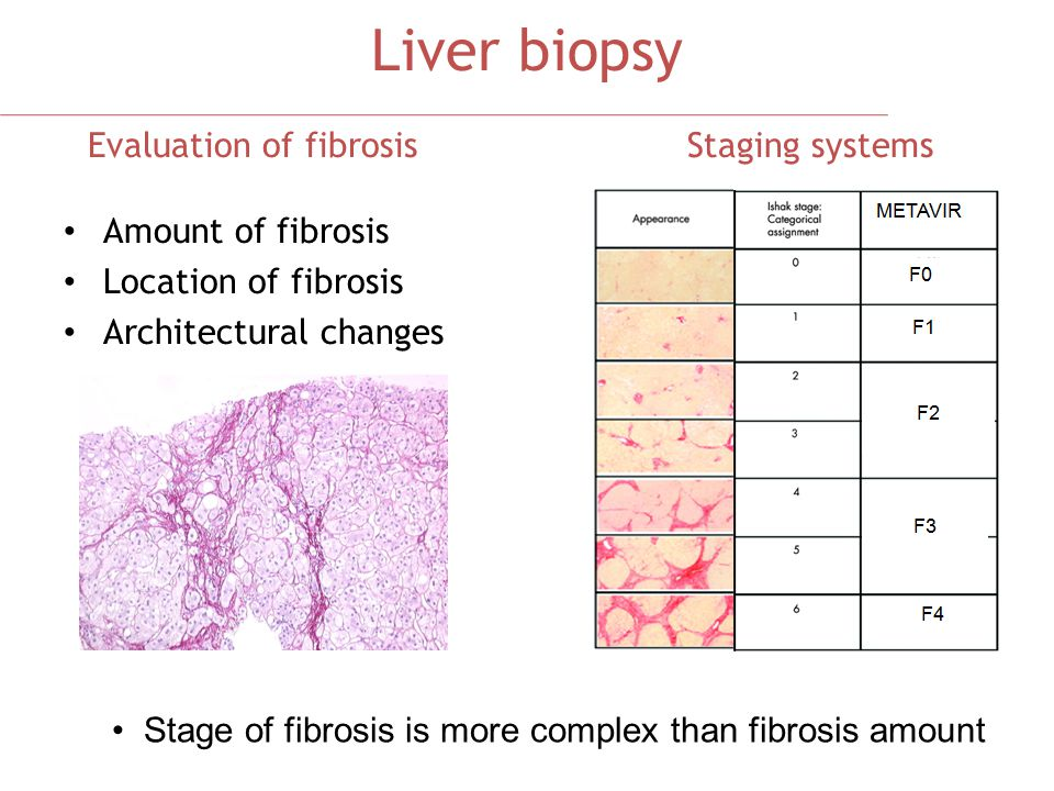 Stage of fibrosis is more complex than fibrosis amount