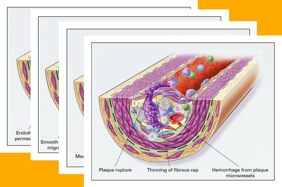 Pathology of Atherosclerosis