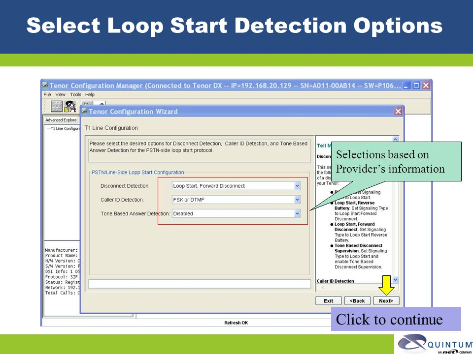 Select Loop Start Detection Options