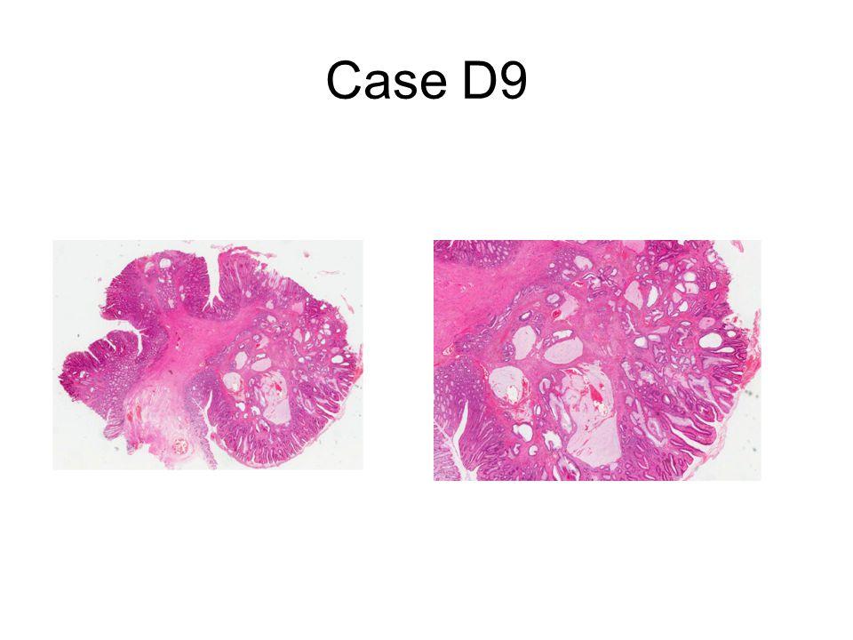 Case D9