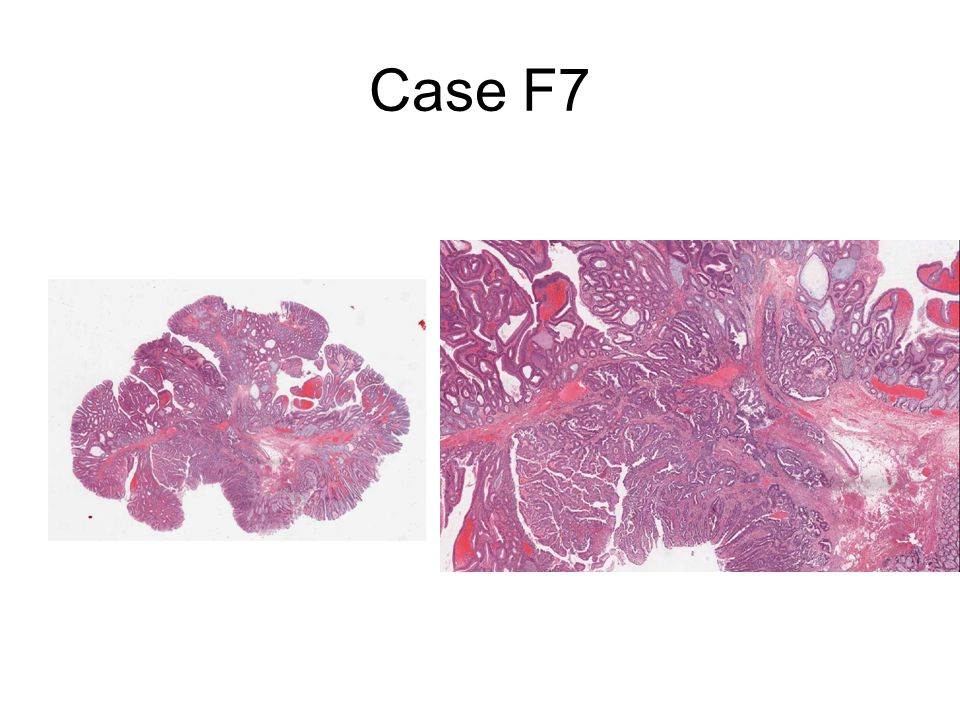 Case F7 31