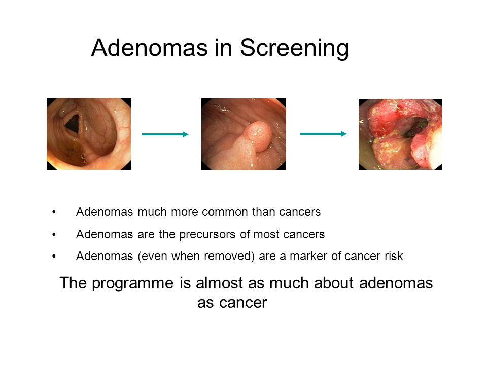 The programme is almost as much about adenomas as cancer