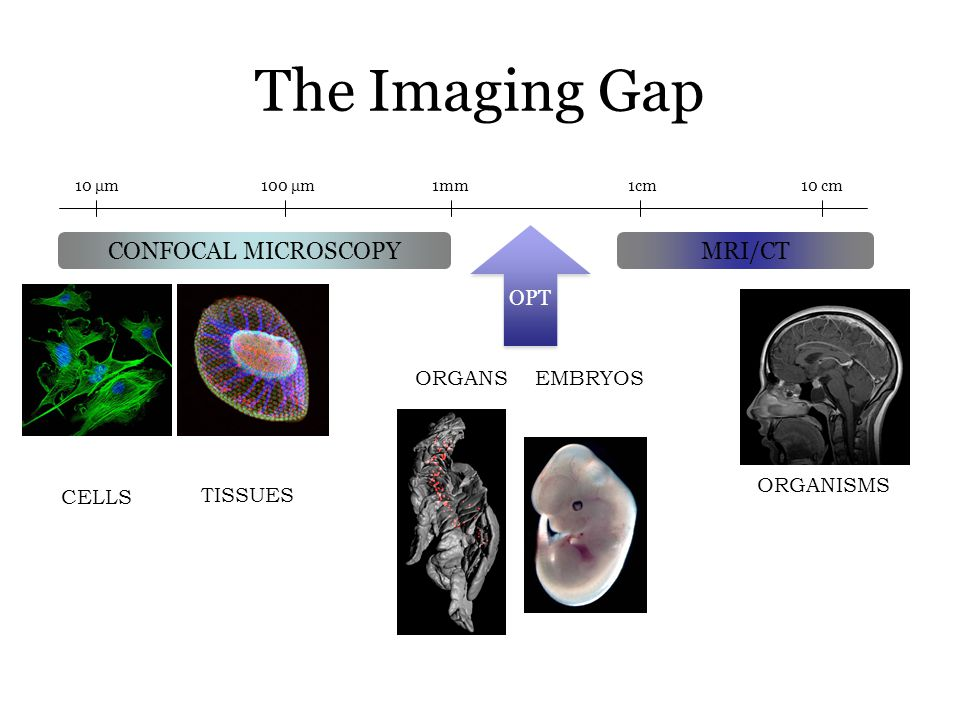 The Imaging Gap CONFOCAL MICROSCOPY MRI/CT OPT ORGANS EMBRYOS