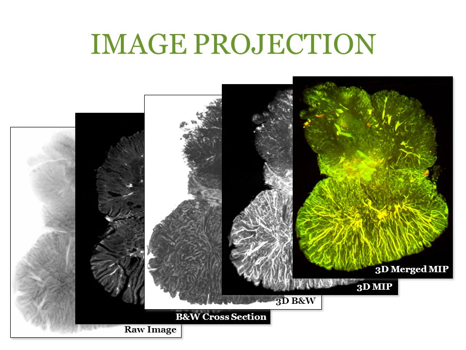 IMAGE PROJECTION 3D Merged MIP 3D MIP 3D B&W B&W Cross Section