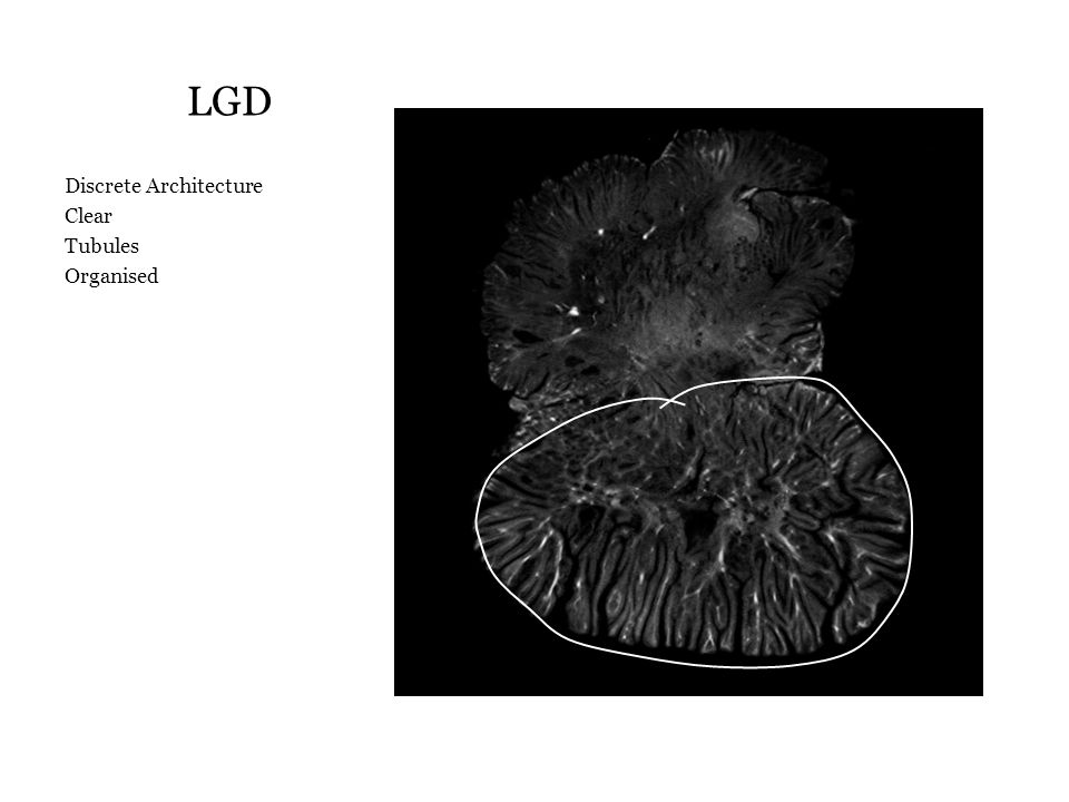 LGD Discrete Architecture Clear Tubules Organised