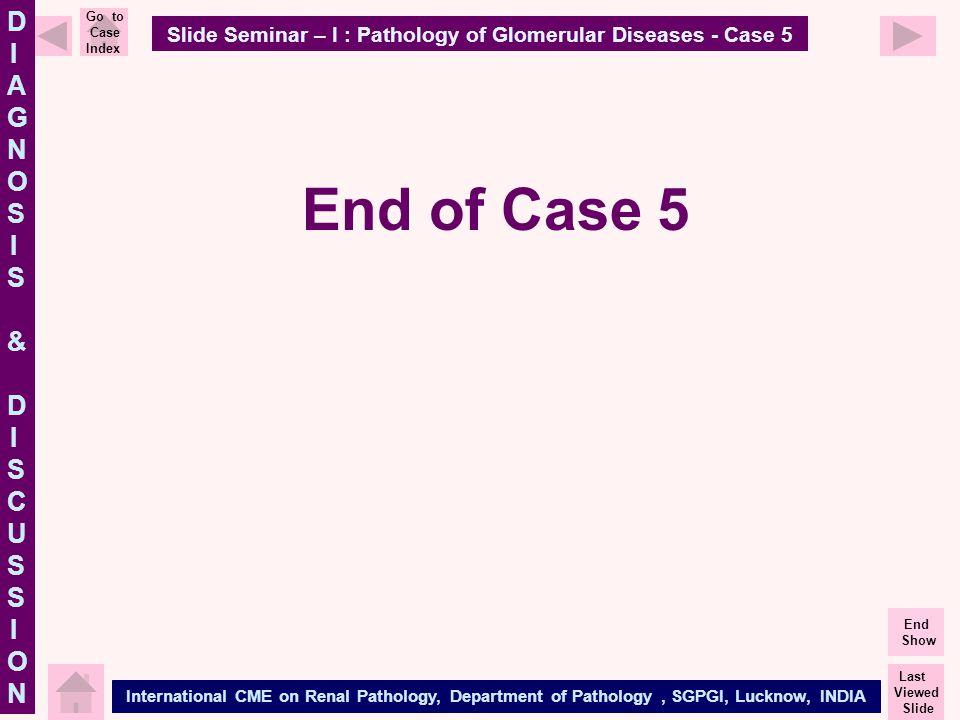 Slide Seminar – I : Pathology of Glomerular Diseases - Case 5