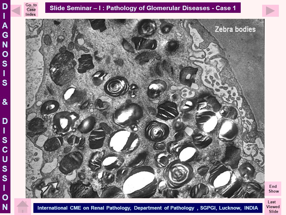 Slide Seminar – I : Pathology of Glomerular Diseases - Case 1