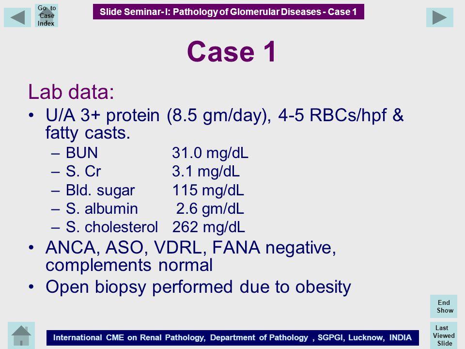 Slide Seminar- I: Pathology of Glomerular Diseases - Case 1