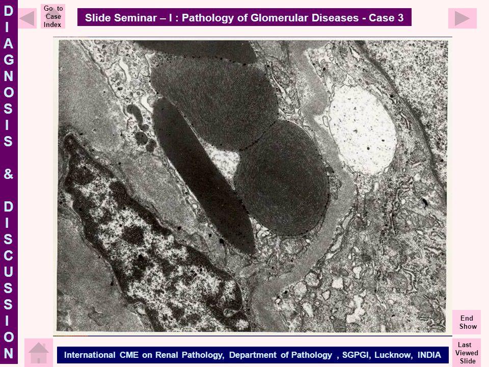 Slide Seminar – I : Pathology of Glomerular Diseases - Case 3