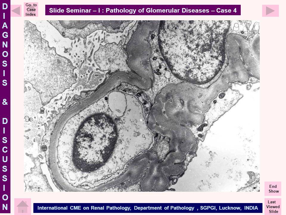 Slide Seminar – I : Pathology of Glomerular Diseases – Case 4