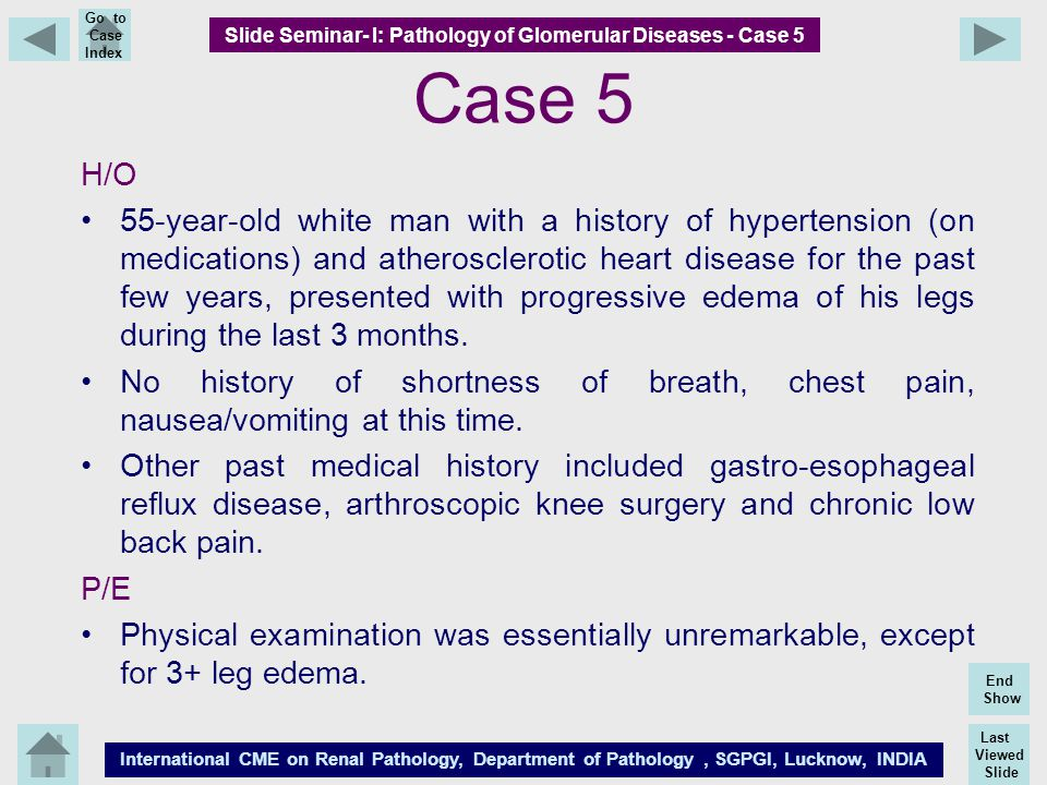 Slide Seminar- I: Pathology of Glomerular Diseases - Case 5
