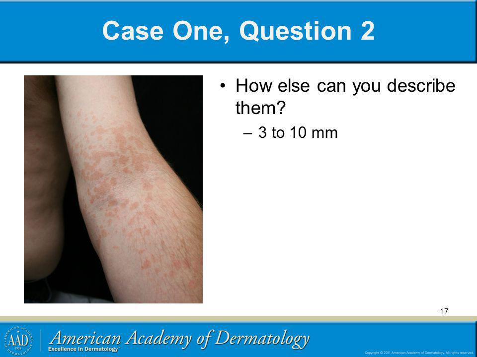 Case One, Question 2 How else can you describe them 3 to 10 mm