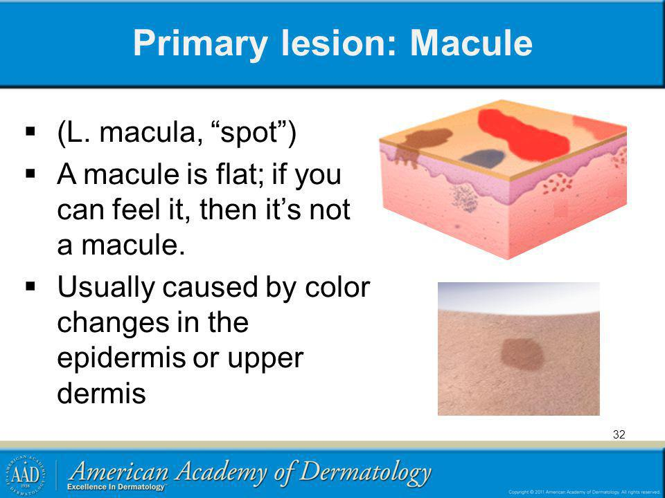 Primary lesion: Macule