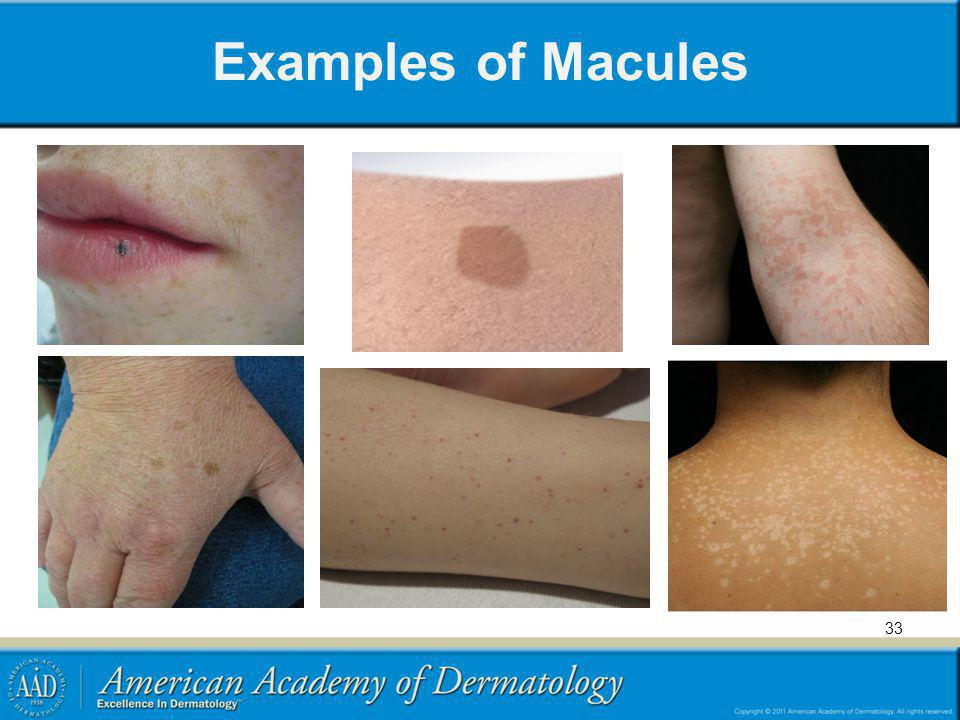 Examples of Macules