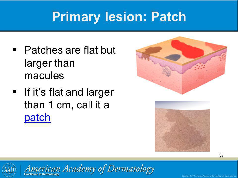 Primary lesion: Patch Patches are flat but larger than macules
