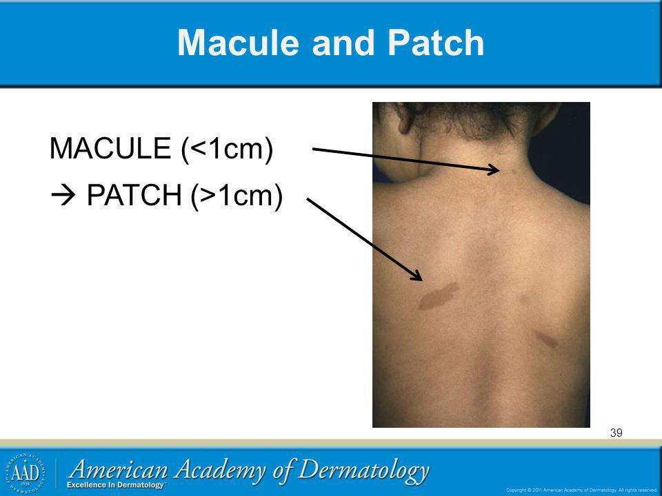Macule and Patch MACULE (<1cm)  PATCH (>1cm)
