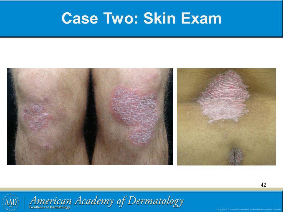 Case Two: Skin Exam