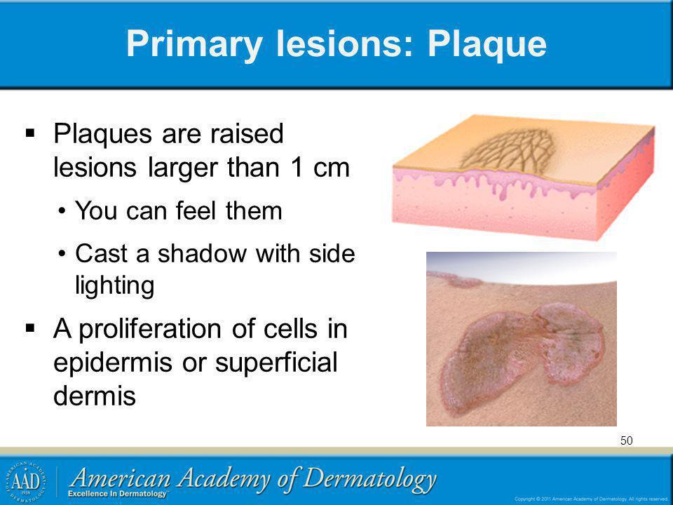 Primary lesions: Plaque