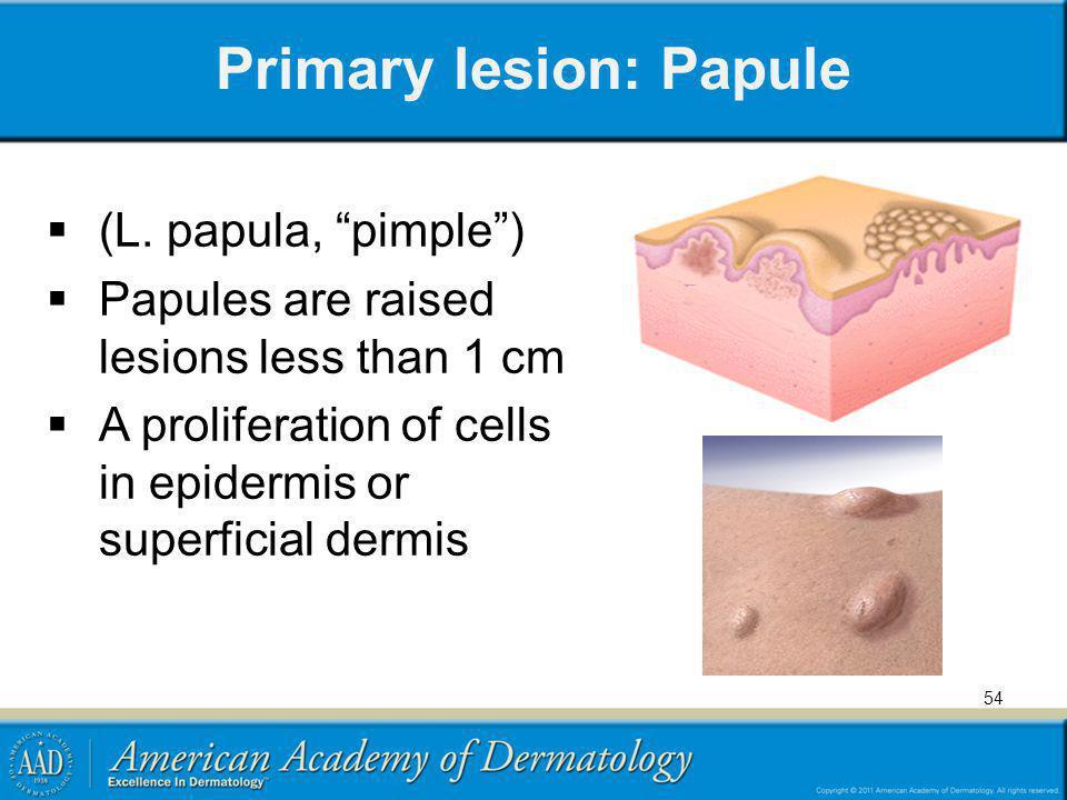 Primary lesion: Papule
