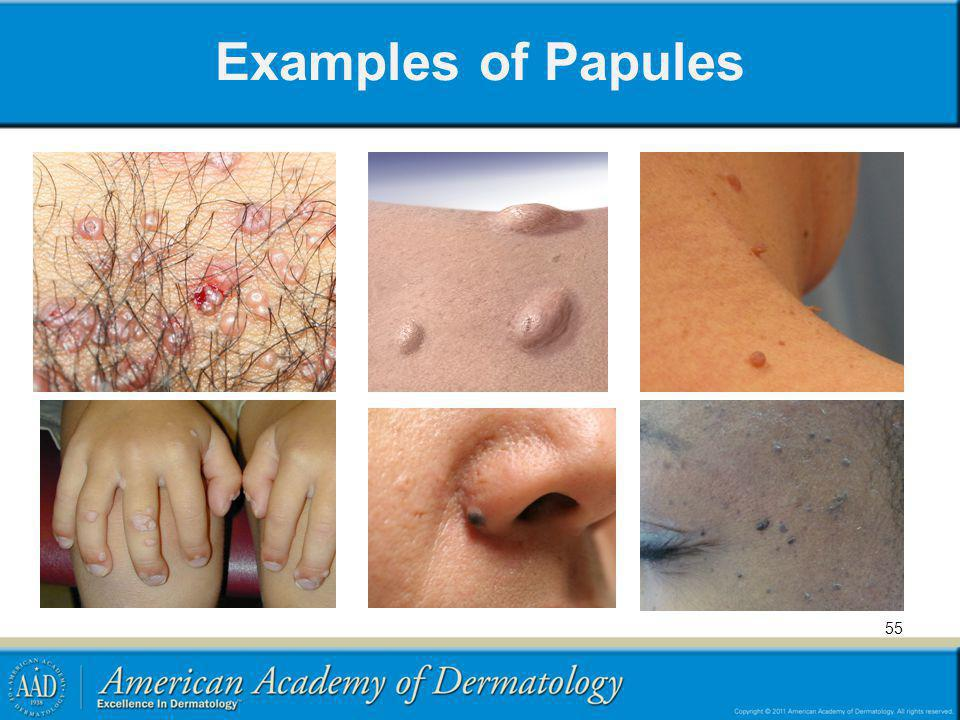 Examples of Papules