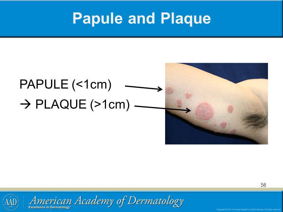 Papule and Plaque PAPULE (<1cm)  PLAQUE (>1cm)